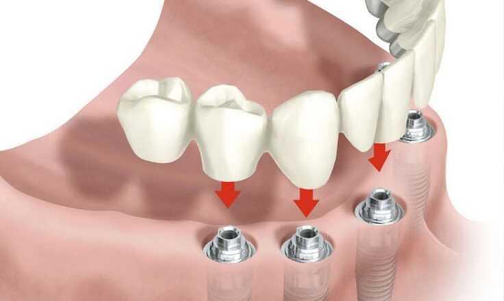 İmplant Diş Ağrısı