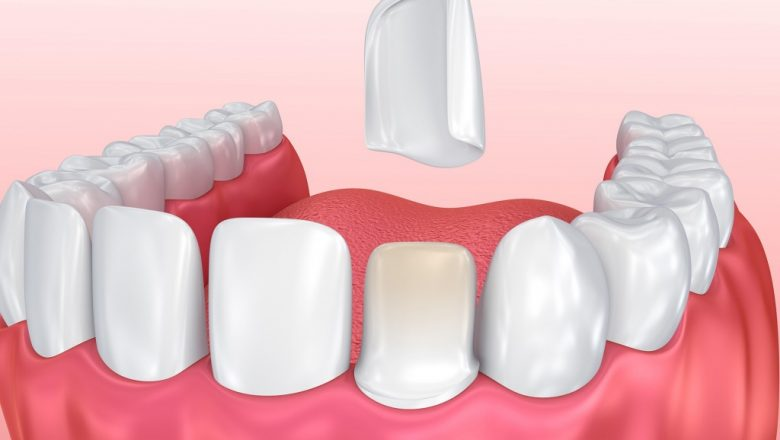 Neden Lamina Diş Tercih Etmeliyim